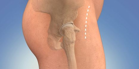 Avail the Hip Replacement at Nominal Cost in India