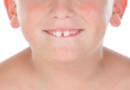 Reduce Gap between Teeth Naturally