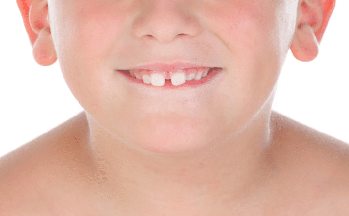 Reduce Gap between Teeth Naturally